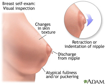 breast tissue problems